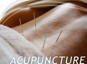 Acupuncture Chinese medicine
