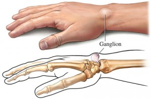 Ganglion-Cyst-In-Wrist